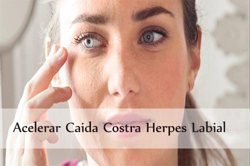 acelerar caida costra herpes labial