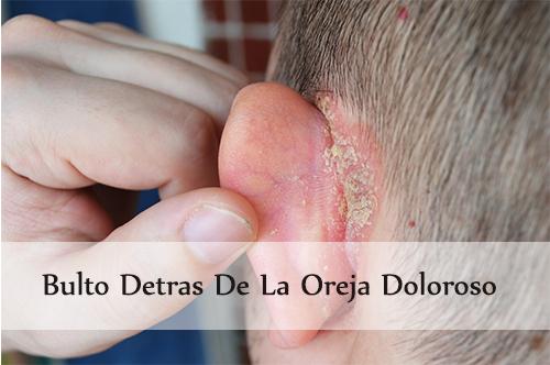 bulto detras de la oreja doloroso