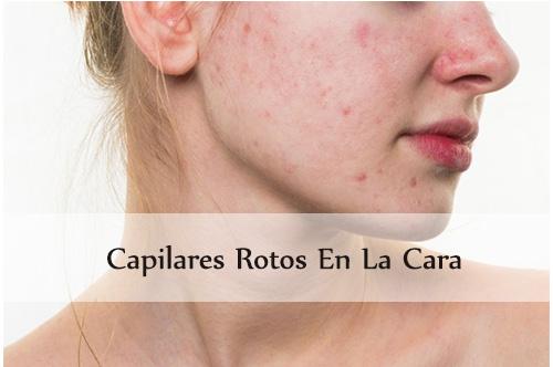 deshacerse de la cara de los capilares rotos