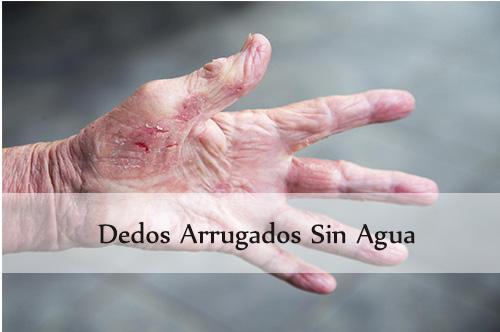dedos arrugados sin agua