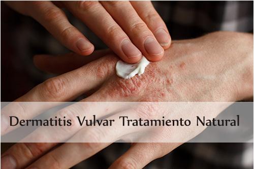 dermatitis vulvar tratamiento natural