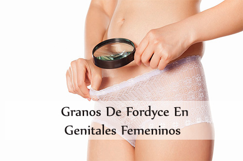 granos de fordyce en genitales femeninos