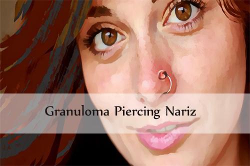 granuloma piercing nariz