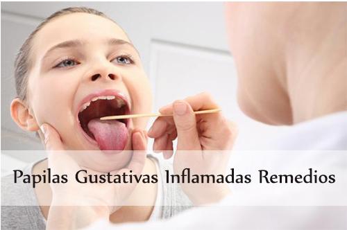 papilas gustativas inflamadas remedios