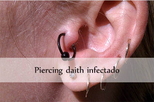 piercing daith infectado