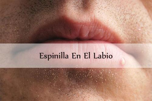 espinilla en el labio